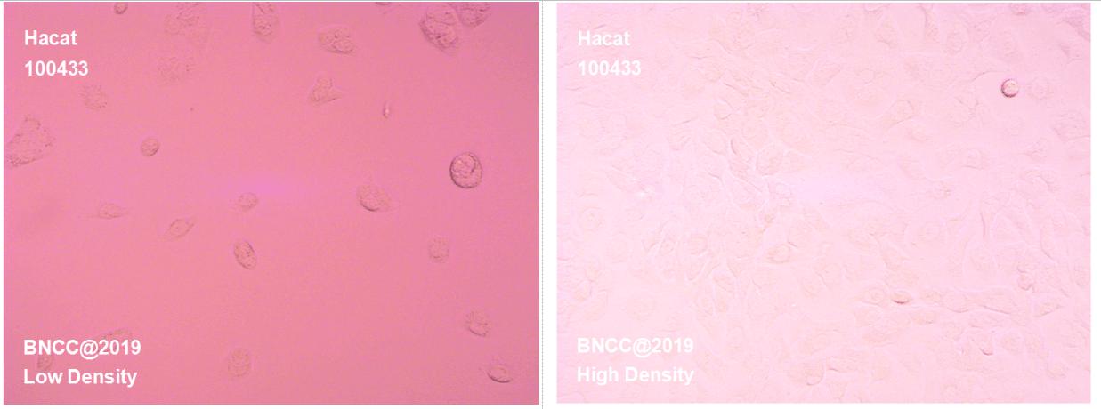 人永生化表皮细胞-菌种及细胞-北纳生物