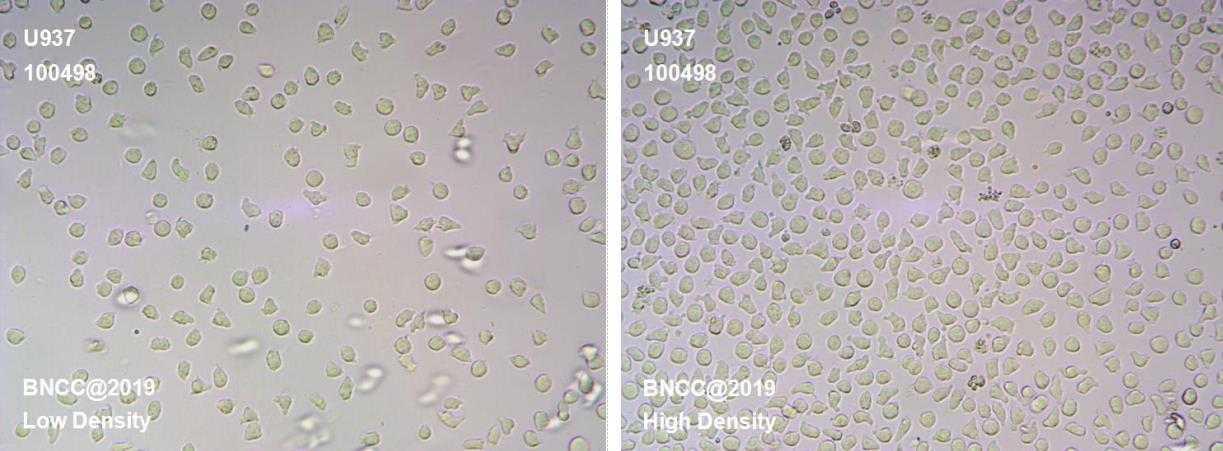 人组织细胞淋巴瘤细胞-菌种及细胞-北纳生物