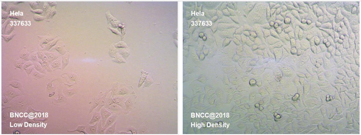 人宫颈癌细胞-菌种及细胞-北纳生物