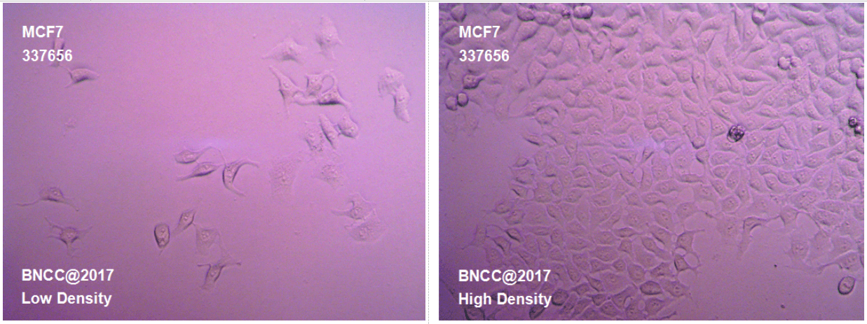 人乳腺癌细胞-菌种及细胞-北纳生物