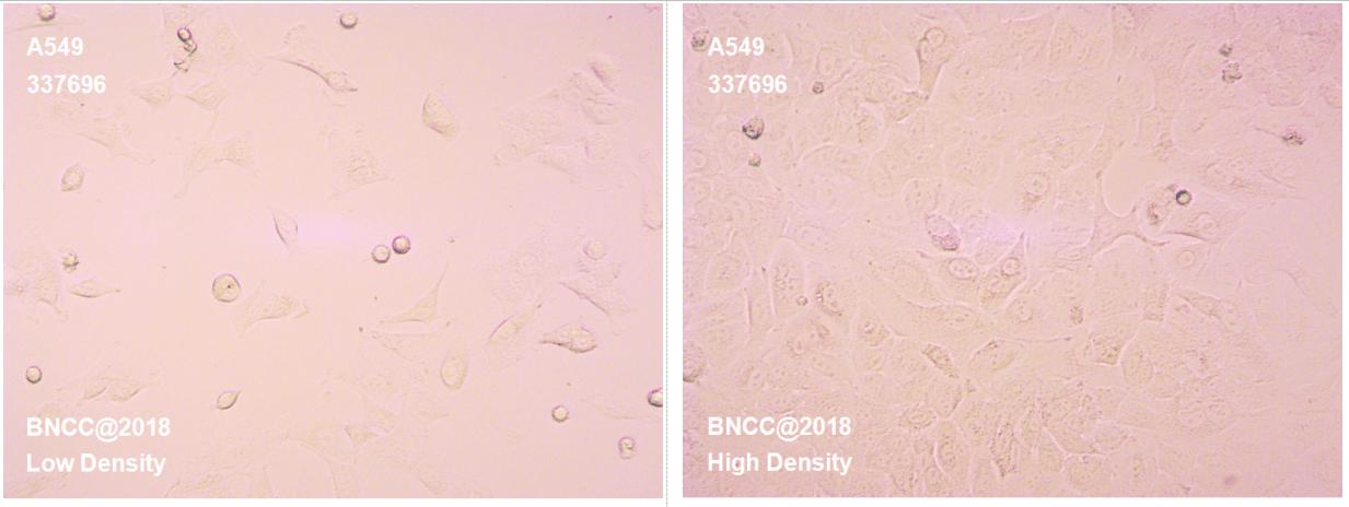 人肺癌细胞-菌种及细胞-北纳生物