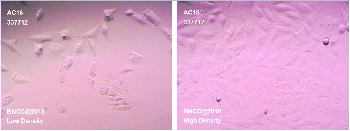 人心肌细胞-菌种及细胞-北纳生物
