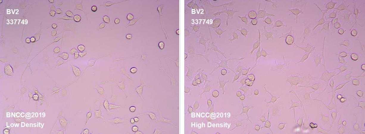 小鼠小胶质细胞-菌种及细胞-北纳生物