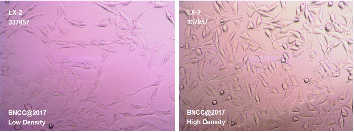 人肝星状细胞-菌种及细胞-北纳生物