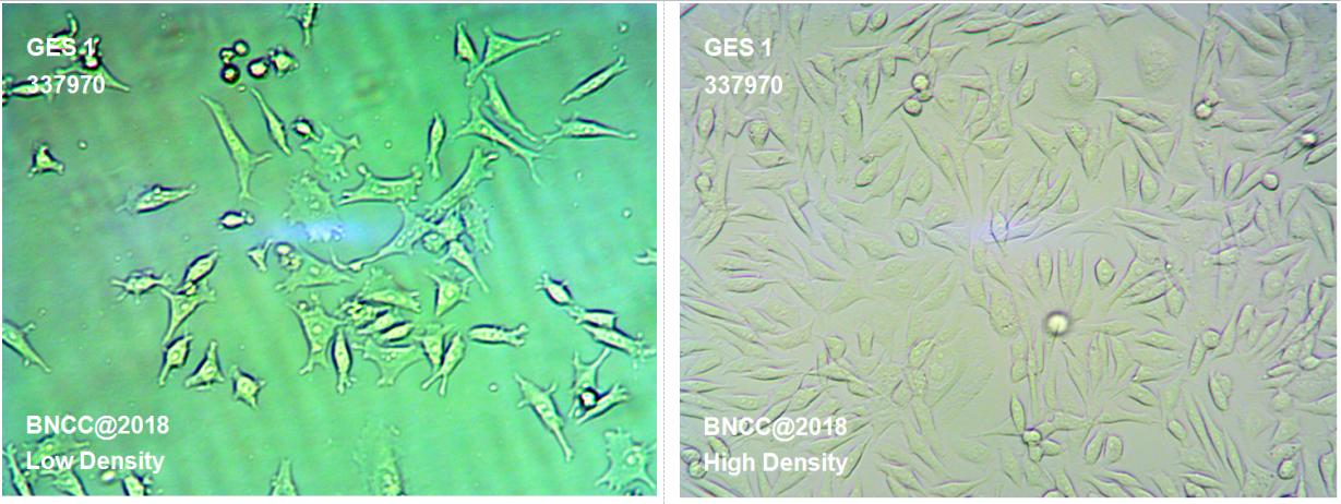 人胃粘膜细胞-菌种及细胞-北纳生物
