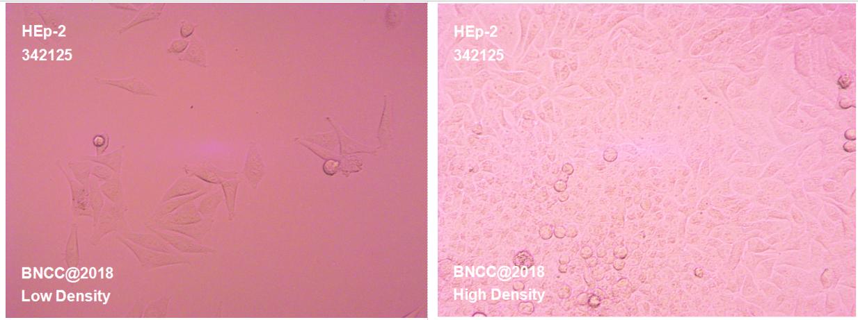 人喉表皮样癌细胞-肿瘤细胞-BNCC细胞库-细胞菌种网