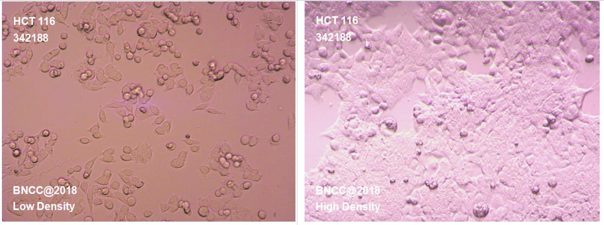 人结肠癌细胞-肿瘤细胞-BNCC细胞库-细胞菌种网