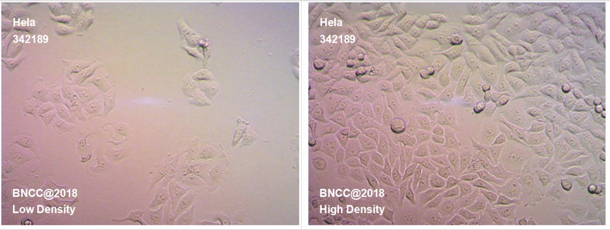 人宫颈癌细胞-肿瘤细胞-BNCC细胞库-细胞菌种网