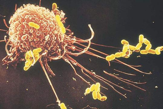 巨噬细胞来源外泌体在心肌梗塞后心脏重塑中的作用-www.bncc.org.cn北纳生物