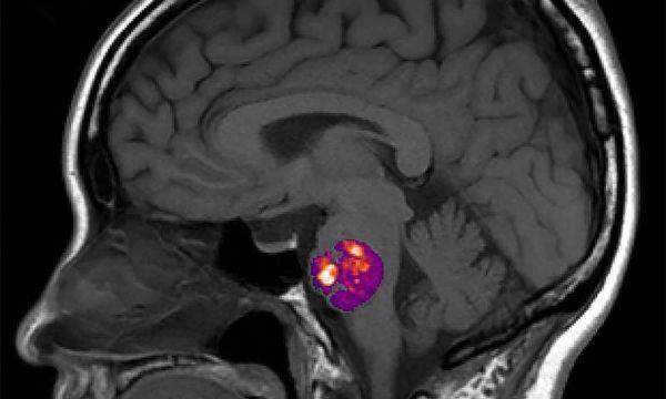 Nat Commu:中风引起的脑血管异常与肠道细菌有关-www.ravenmoonsmedia.com北纳生物