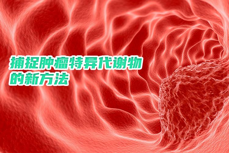 我国科学家独创捕捉肿瘤特异代谢物的新方法-www.ravenmoonsmedia.com北纳生物
