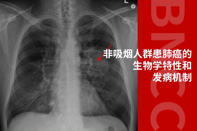 Cell解读!迄今为止最全面的研究揭示非吸烟人群患肺癌的生物学特性和发病机制!-www.bncc.org.cn北纳生物