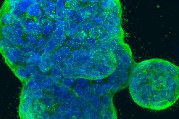 PNAS:细菌感染时宿主细胞融合警示免疫系统,致宿主细胞破坏-www.bncc.org.cn北纳生物
