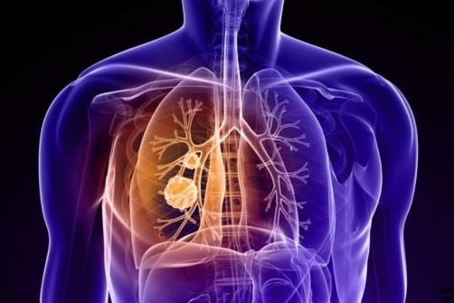 Nature重大突破!肺癌精准治疗临床试验取得成功-www.bncc.org.cn北纳生物