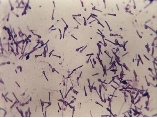 厌氧微生物的培养方法-www.bncc.org.cn北纳生物