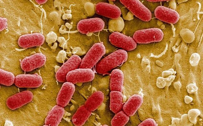 CRISPRi 筛选解决代谢复杂性—揭示大肠杆菌对酶敲除的代谢抵抗-www.bncc.org.cn北纳生物