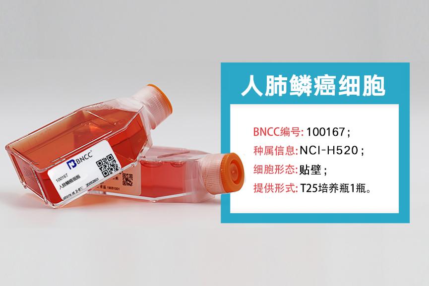 【新品推荐】人肺鳞癌细胞新品上市,欢迎选购!-www.bnbio.com北纳生物