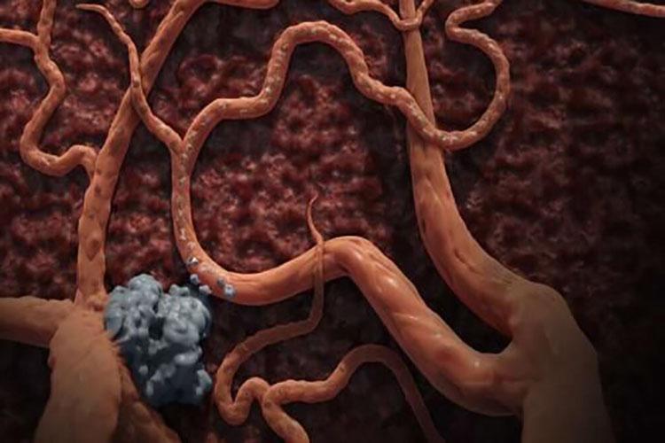 癌症免疫疗法会被肝脏肿瘤特异性地抑制-www.bncc.org.cn北纳生物