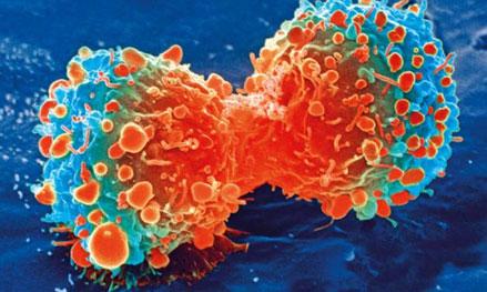 癌症中的非编码RNA-www.bncc.org.cn北纳生物