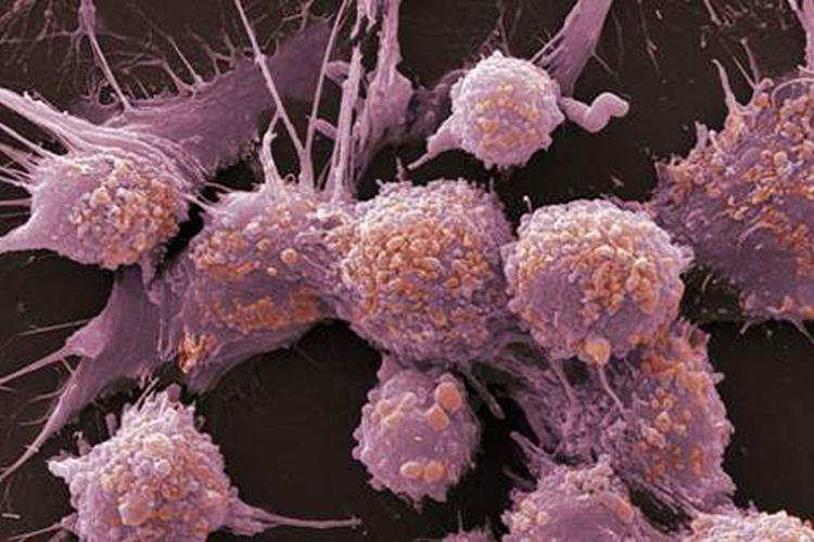 癌细胞如何躲避宿主机体免疫系统的攻击-www.trendslot.com北纳生物